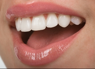 Learn About Porcelain Veneers