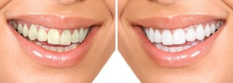 Teeth Whitening Treatment At Belmont, MA