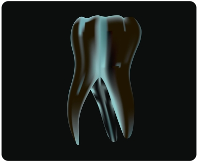 Root canals treatments
