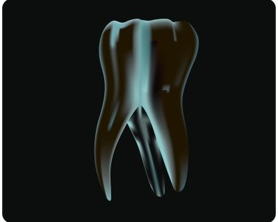 Importance of Root Canal