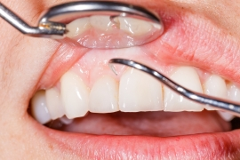 Treating Gum Disease by Belmont Dental Group