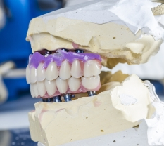 Benefits from Porcelain Inlays by Belmont Dental Group