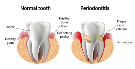 Tips for Preventing Periodontal Disease