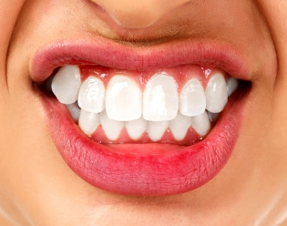 Grinding of Teeth Due to Stress