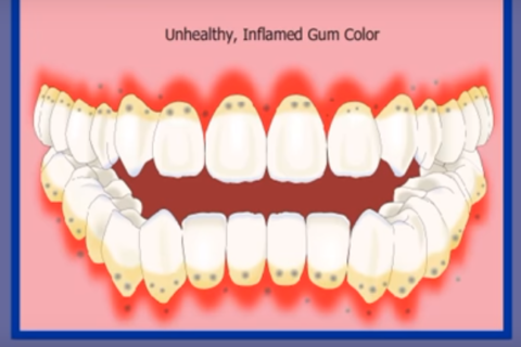 Gum Disease Progression Explained by Belmont Denta Group (Ma)
