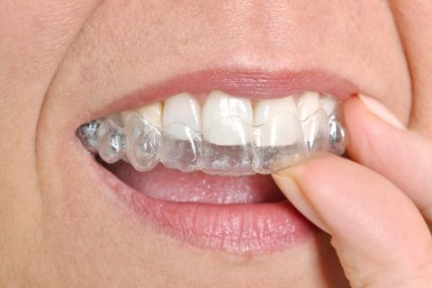 Adjusting to Life with Invisalign