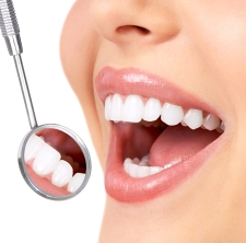 Advantages of Professional Teeth Whitening