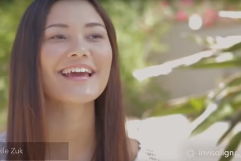 Invisalign Story of a Happy Patient