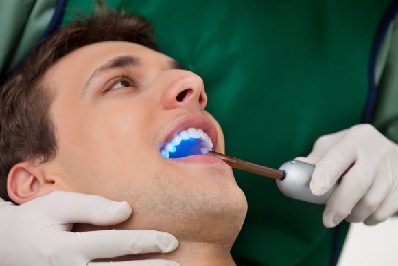 Dental Sealants Therapy At Belmont, MA