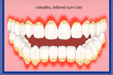 Inflamed Gum Colour
