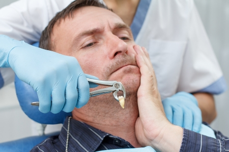 Common Reasons for Tooth Extractions